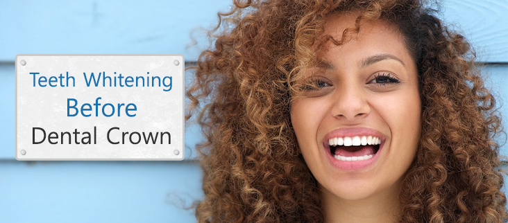 Teeth Whitening Advice